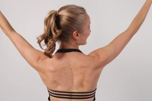 Analyzing Scoliosis with Erin Myers